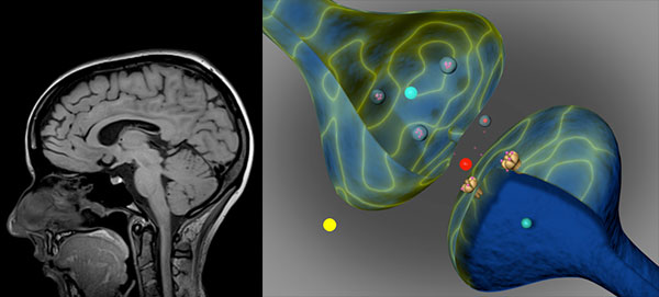 photo of imaging on the right and head with brain inside illustration on the left
